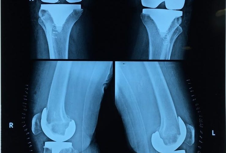 X-Ray of Transplanted Knee